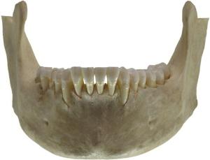 Human_jawbone_front