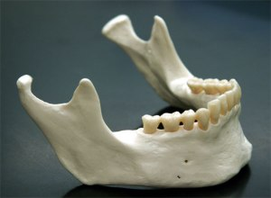 Mandible_11_a