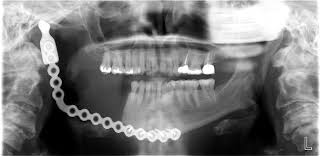 titanium jaw implant.jpg