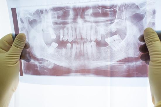 Jaw dental x-ray scan front view